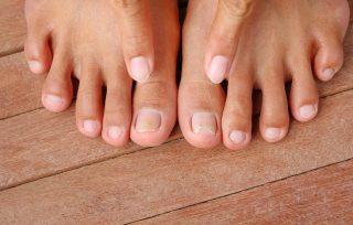 Was hilft wirklich gegen pilzinfektionen an den füssen oder nägeln?