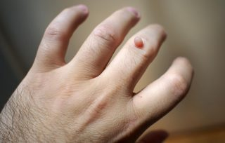 Natürlicher Weg, Um Hautinfektionen Zu Beseitigen Und Das Immunsystem Zu Stärken